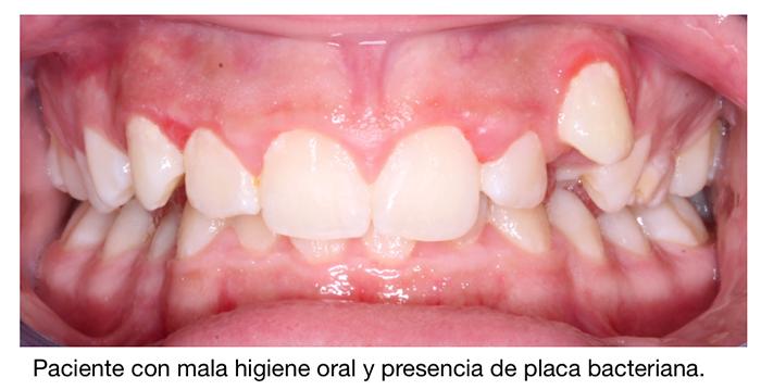 Durante la ortodoncia la mala higiene oral provoca la aparición de placa bacteriana