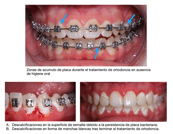 Durante la ortodoncia una mala higiene puede provocar manchas blancas en los dientes por brackets