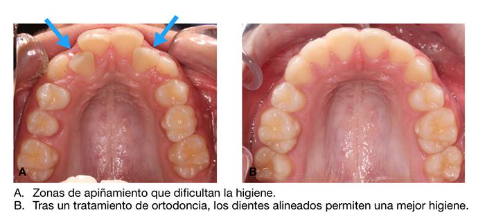 Con la ortodoncia se consigue mejor higiene oral ya que una vez alineados los dientes se pueden cepillar de forma más sencilla