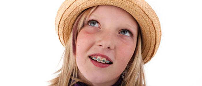 ¿La ortodoncia provoca caries?