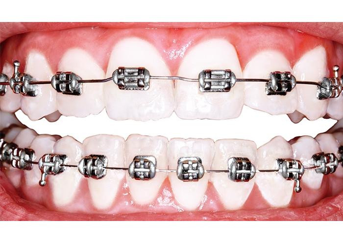 En ortodoncia con brackets, los brackets tienen una información específica que se expresa a través del arco