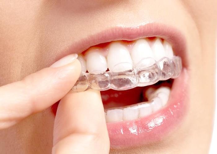 En ortodoncia Invisalign con alineadores, los alineadores hacen la fuerza cambiando su forma de manera muy calibrada