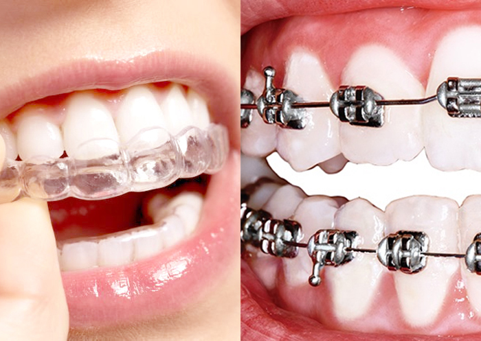 ◦ La ortodoncia mixta consiste en combinar brackets y alineadores, o lo que es lo mismo, brackets e Invisalign