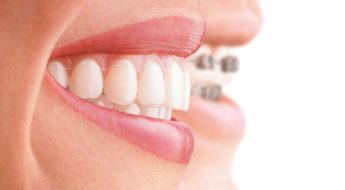 Brackets de ortodoncia, te explicamos qué son, cómo funcionan y tipos de brackets