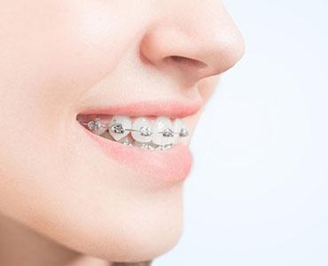 Brackets metálicos conocidos también como brackets fijos o convencionales