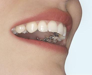 Brackets linguales conocidos también como brackets estéticos son una alternativa a los brackets metálicos convencionales