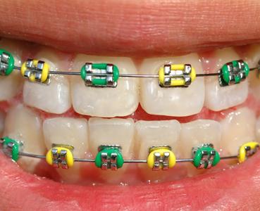 Brackets con gomas de colores, hacen que la ortodoncia sea algo más divertido