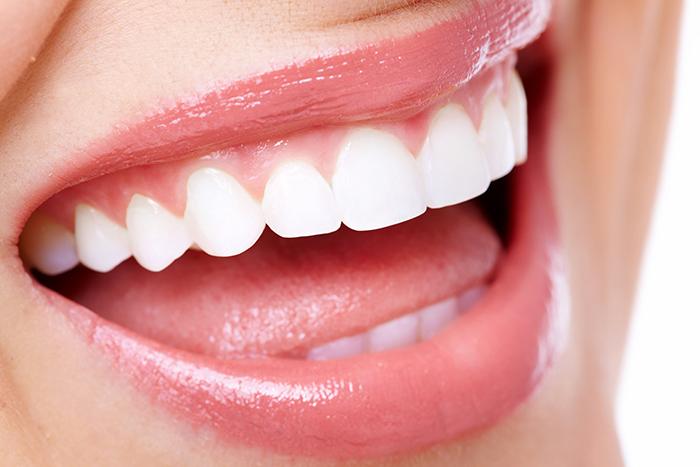 Imagen de una sonrisa después de aplicar la técnica de stripping dental después del tratamiento de ortodoncia