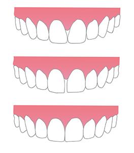 Secuencia de stripping dental de ortodoncia en el caso de medidas no apropiadas de los dientes superiores o inferiores que deben ajustarse