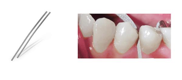 Utilización de las tiras de stripping dental para romper el punto de contacto entre los dientes sin necesidad de conseguir mucha reducción de espacio