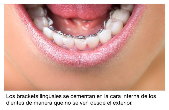 Imagen de un aparato lingual colocado en la cara interna de los dientes