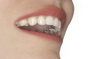 Imagen de un aparato lingual a base de brackets cementados en la cara interna de los dientes utilizado en la técnica lingual de ortodoncia invisible