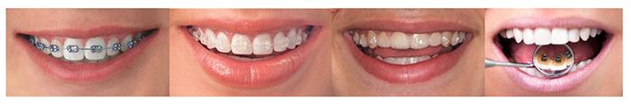 Imagen con las técnicas de ortodoncia, de izquierda a derecha: aparatos metálicos, brackets de cerámica, Invisalign y técnica lingual de ortodoncia