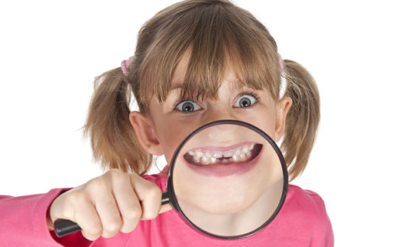 Imagen de una dentadura con mordida cruzada en la que se observa que los dientes de la arcada superior no abrazan correctamente a los de la arcada inferior