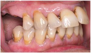 Imagen de una dentadura con enfermedad periodontal en la que se observa la posición e inclinación más adelantada de los incisivos.