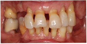 Imagen de una dentadura con enfermedad periodontal en la que se observa la migración dental patológica debido a la disminución de soporte del periodonto
