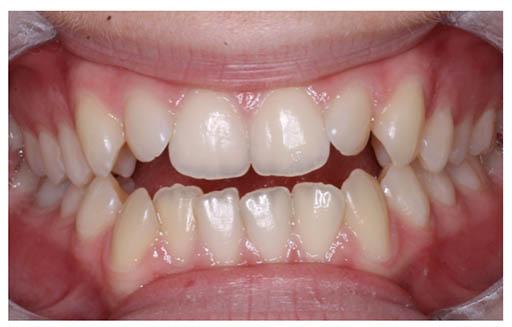 Imagen de una dentadura con mordida abierta anterior