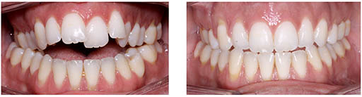 Imagen de dentadura con mordida abierta esquelética corregida sin cirugía con tratamiento de ortodoncia fija convencional