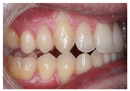Imagen de una dentadura con mordida abierta posterior