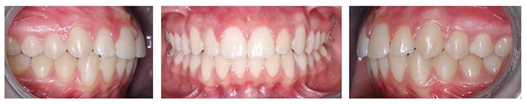 Imagen de tres dentaduras con oclusión ideal y sin mordida abierta