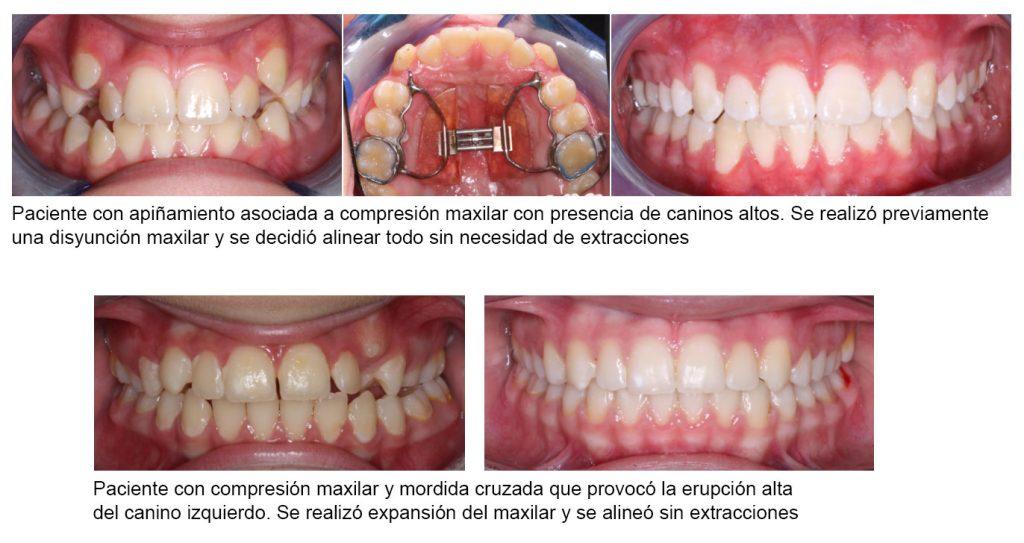 Imagen que muestra colmillos montados antes y después del tratamiento sin extracciones con aparato expansor de paladar