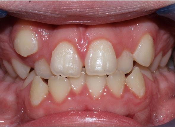 Primer plano de una dentadura que presenta colmillos montados o caninos elevados