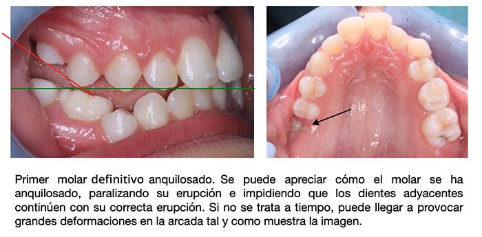 Imágenes que muestran las consecuencias de la anquilosis dental: el diente anquilosado se queda hundido impidiendo que los dientes adyacentes crezcan
