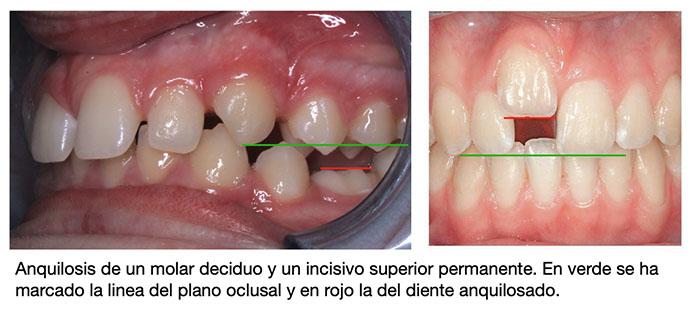 Imagen de dientes anquilosados
