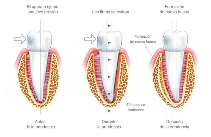 Imagen de las modificaciones que sufre el ligamento periodontal durante la ortodoncia que permite que el diente se desplace a la posición deseada