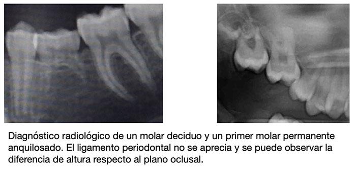 Imagen de radiografías que muestran de dientes anquilosados
