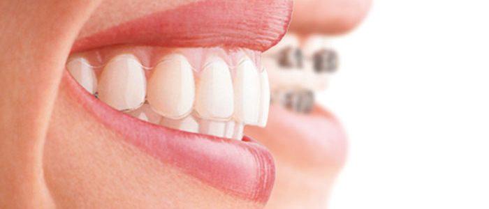 Técnicas para mejorar la higiene bucodental con ortodoncia