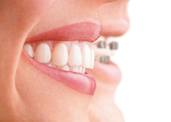 Imagen ortodoncia invisalign y brackets para introducir post Técnicas para mejorar la higiene bucodental con ortodoncia