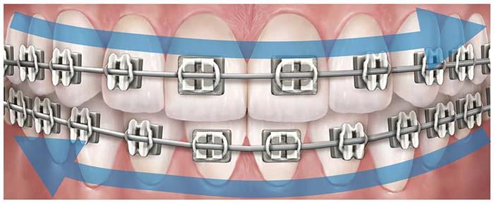 Primer plano de una dentadura con ortodoncia fija y flechas que indican la dirección del cepillado para una buena higiene oral en ortodoncia