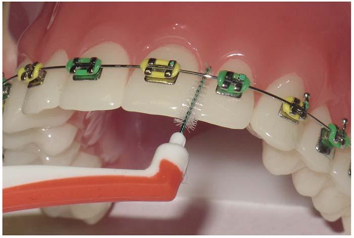 Primer plano de un cepillo interdental entre el alambre de la ortodoncia fija y el diente