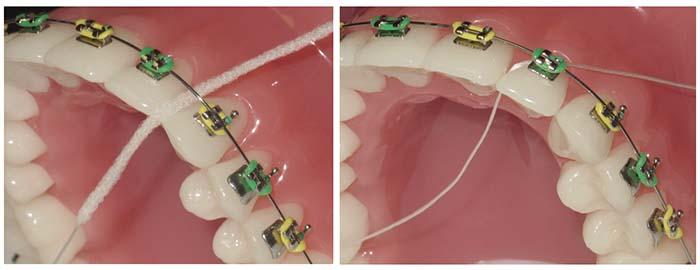 Hilo dental Superfloss pasando por debajo del alambre de ortodoncia fija, a la izquierda parte rígida y a la derecha la parte convencional