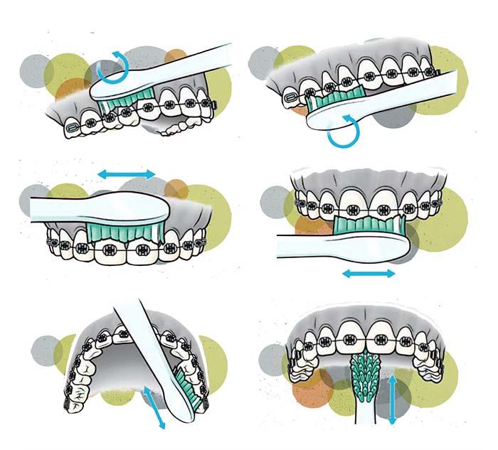 Secuencia del cepillado de dientes con ortodoncia fija que muestra cómo cepillar todas las caras del diente