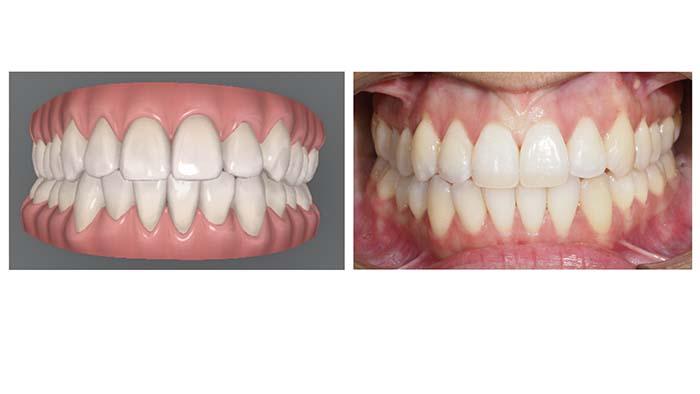 Ejemplo del resultado del tratamiento de apiñamiento inferior distalando toda la arcada inferior y alineando los dientes