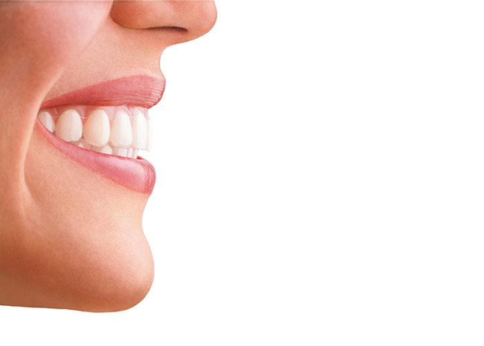 Imagen ortodoncia invisalign para introducir post Cómo actúa Invisalign en casos difíciles