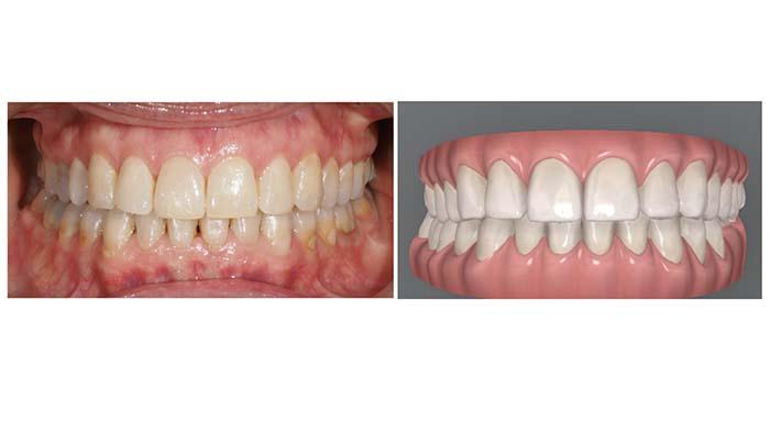 Ejemplo del resultado del tratamiento de intrusión progresiva con Invisalign con el que se obtiene una correcta oclusión anterior