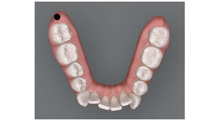 Primer plano dentadura con ejemplo de distalización de toda la arcada inferior con microtornillos colocados detrás de los segundos molares inferiores