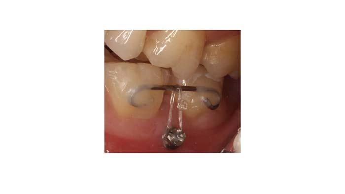 Primer plano de la colocación de un microtornillo entre el primer y segundo molar inferior izquierdo
