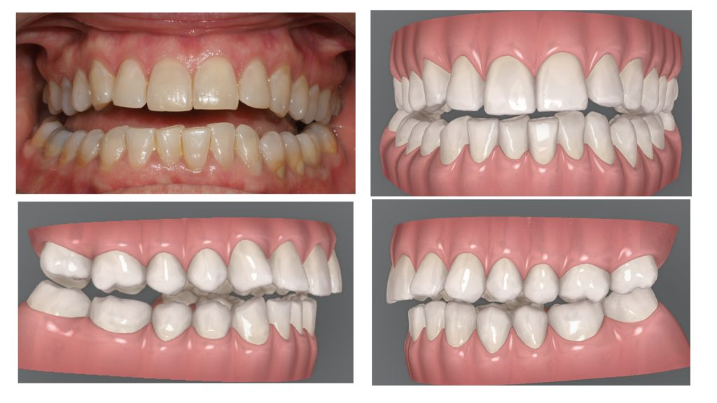 4 ejemplos de mordida abierta anterior donde el único contacto dental se situa en los segundos molares