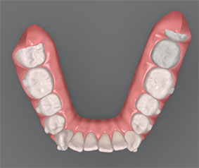 Imagen 3D del caso inicial de dientes apiñados