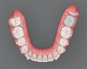 Simulación 3D del resultado final de la ortodoncia invisible en dientes apiñados