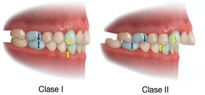 Simulación 3D de la correcta oclusión clase I y de la maloclusión clase II de la protrusión dental