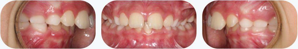 Vista frontal y lateral de la mandíbula de un paciente con protrusión dental