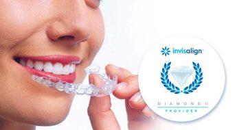 Ortodoncia Tres Torres obtiene la certificacion Invisalign Diamond II