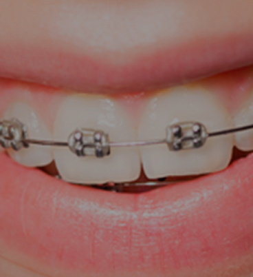 Orthodontics visible with brackets in Orthodontics Tres Torres Barcelona
