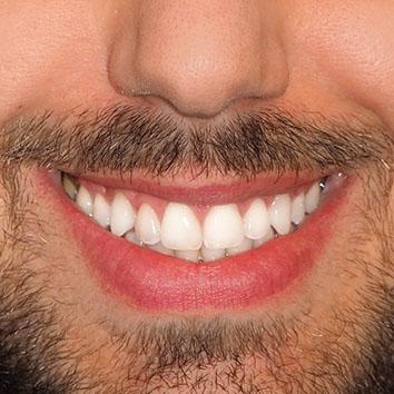 Hay dos tipos de blanqueamiento dental según las técnicas de aplicación, el blanqueamiento dental láser en la clínica y el blanqueamiento dental en casa