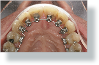 Orthodontics Tres Torres Barcelona results real case